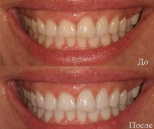 Отбеливание зубов в Фотошоп