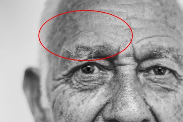 Уменьшение глубоких морщин в Фотошоп